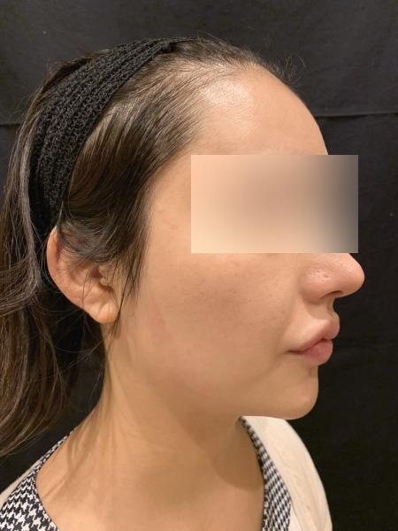 小顔脱毛の施術後03
