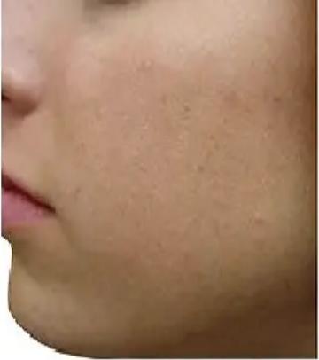 PRP皮膚再生療法_施術後3