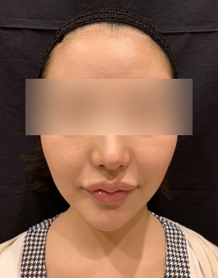 小顔脱毛の施術前01