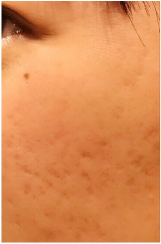 PRP皮膚再生療法前