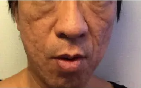 PRP皮膚再生療法_施術前