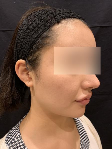 小顔脱毛の施術前03
