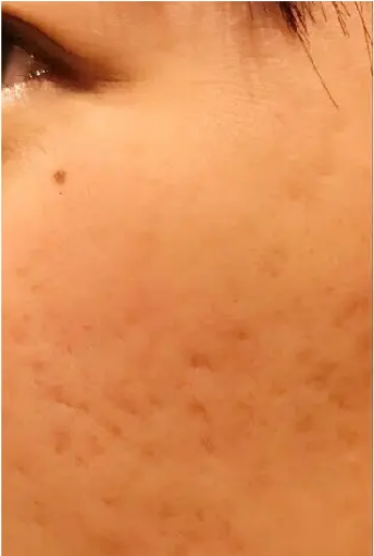 PRP皮膚再生療法_施術前2