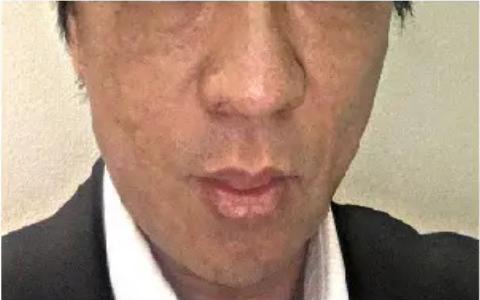 PRP皮膚再生療法_施術後