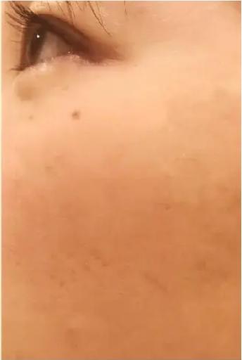 PRP皮膚再生療法_施術後2