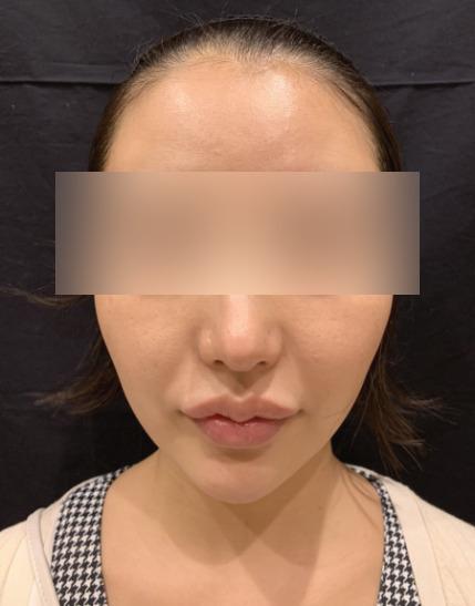 小顔脱毛の施術後01