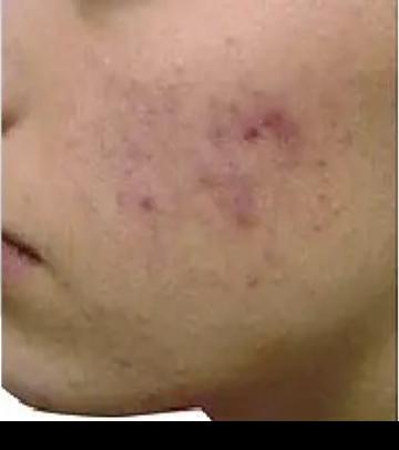 PRP皮膚再生療法_施術前3
