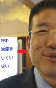 PRP施術前