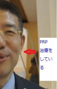 PRP施術後