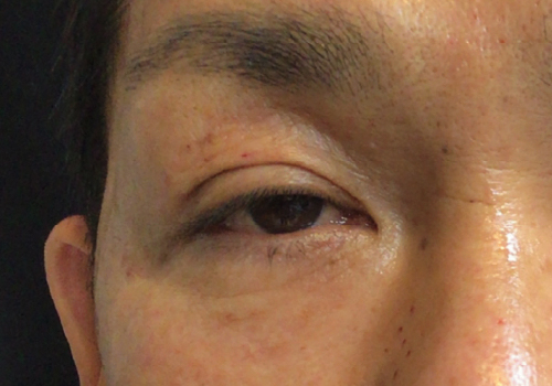 目元のPRP療法施術2ヶ月後