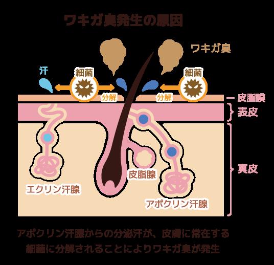 多汗症にボトックス治療