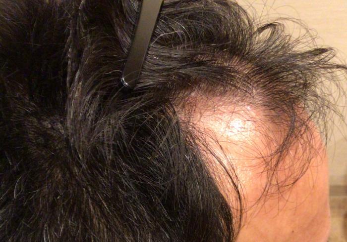 PRP、ACRS 毛髪再生療法beforeおでこ