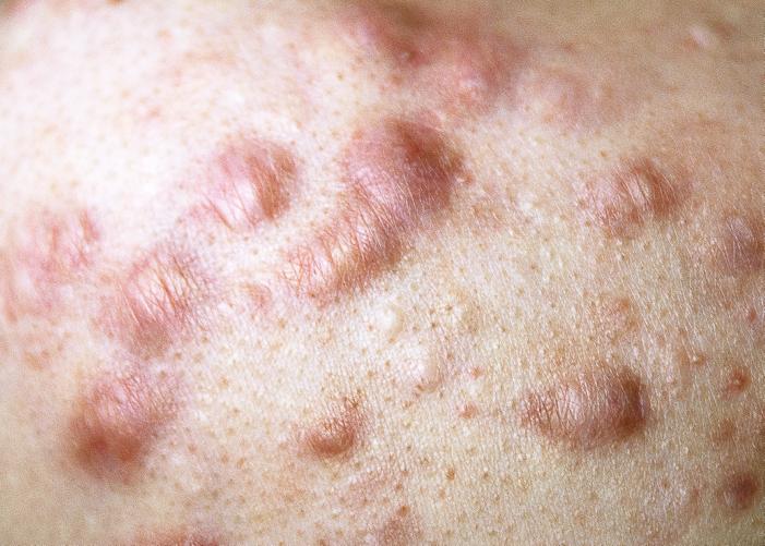 ケロイドニキビ、肥厚性瘢痕
