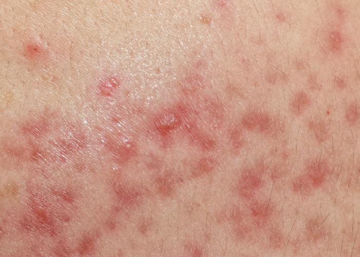 慢性炎症ニキビ