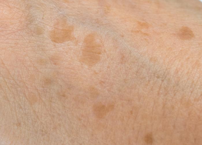 老化現象、老人性色素斑、日焼けが原因
