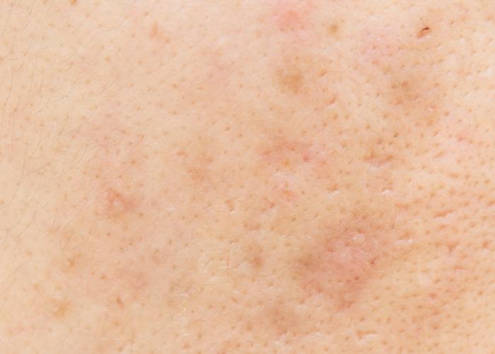 炎症後の色素沈着、化粧かぶれ、シミ、そばかす、肝斑