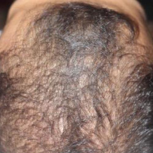 毛髪再生療法、薄毛改善、育毛治療