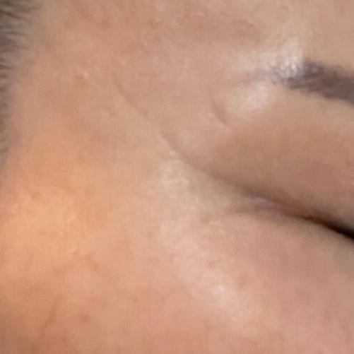 ベビースキン(臍帯血幹細胞培養上清液療法)