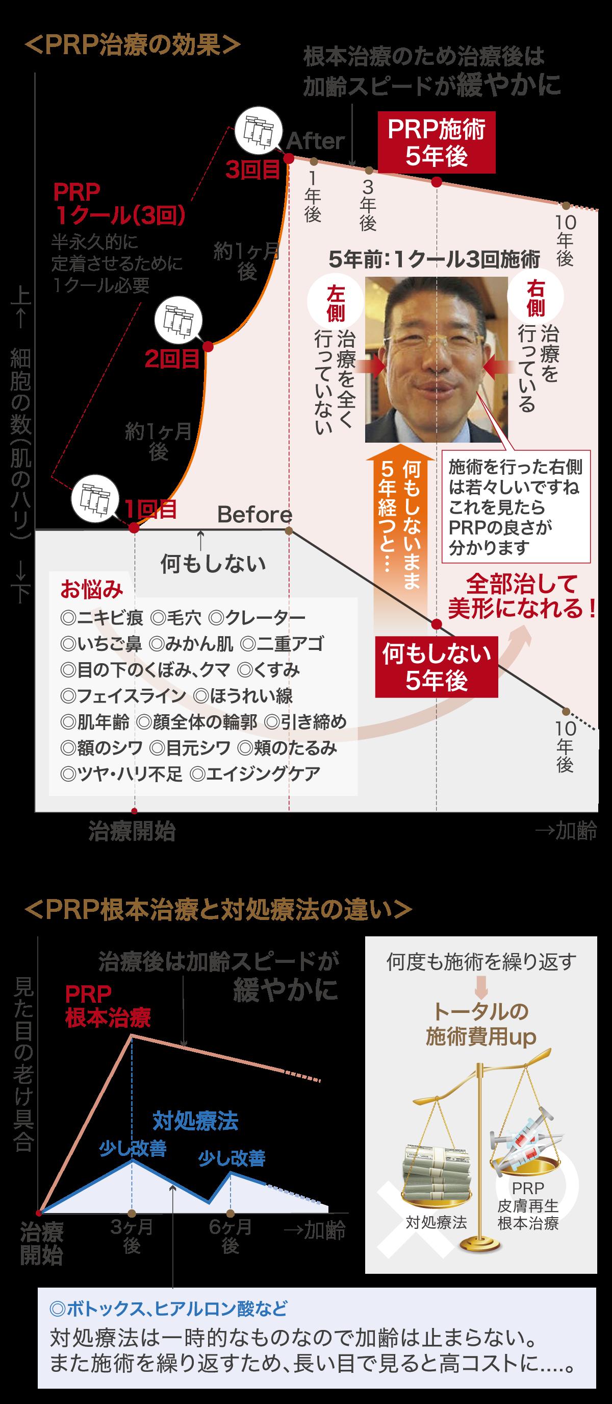 PRPの効果図
